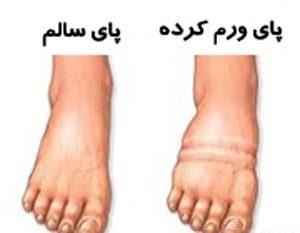 علت تورم پا